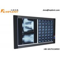 ZG-2B Wall Mounted Slim LED X-Ray View Box Double Panel Medical LED Negatoscopio for sale