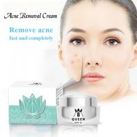 China Skin Care Day and Night Cream for Dark Spot Acne Removing on sale