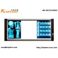 ZG-3B 25mm Slim LED X-Ray View Boxes Portable Side Lit Triple Negatoscopio LED for sale