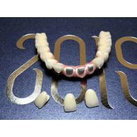 China Smooth Surface Implant Dental Crown Biocompatible Easy Maintain Corrosion Resistant on sale