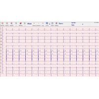 Heart echo stress test 500Hz , stress ecg test PC and box connecte