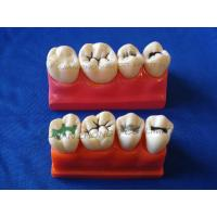 Best Dental Four times the pit and fissure model wholesale