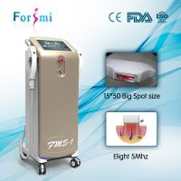 factory directly sale 3000W Input power shr hair removal laser machine