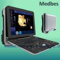 Wholesale Hospital 3D Fetal doppler Ultrasound Scanner Ultrasound Machine from china suppliers