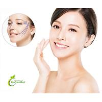 Aesthetic PDO COG Lifting Thread for Plastic Surgery for sale