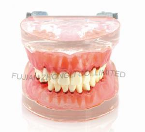 Best Dental Transparent gingivitis model pathology oral model dental calculus with metal jaw frame new wholesale
