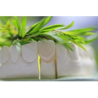 China Natural Permanent Glass Ceramic Dental Crown For Anterior Teeth on sale