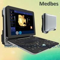 Wholesale Hospital Equipment Medical Diagnostic Ultrasound Machine  Hospital Fetal doppler Ultrasound from china suppliers