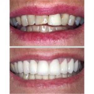 China Strong Hardness Metal Free Esthetics Dental Zirconia Crowns For Dental Restoration on sale