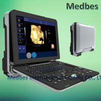 Wholesale Hospital 4D Fetal doppler Ultrasound Scanner from china suppliers