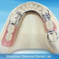 China best selling customized partial Co-Cr metal framework denture tooth on sale